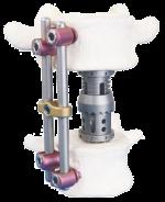 Система переднебоковой грудо-поясничной фиксации - «Лотос»
